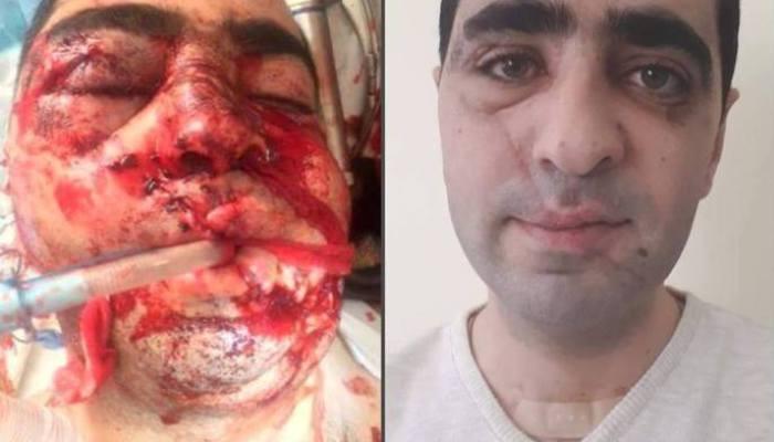 «Շնորհակալություն երկրորդ կյանքի համար». հայ վիրաբույժները փրկել են դեմքի պայթյունային վիրավորումով հոսպիտալացված պացիենտի կյանքը