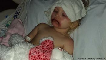 Մանկական կոսմետիկայի պատճառով 3-ամյա աղջիկը հայտնվել է հիվանդանոցում