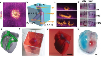 3D Printing of Personalized Thick and Perfusable Cardiac Patches and Hearts