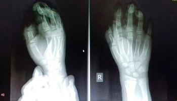 «Երեխայի ջնջխված մատները՝ պայթուցիկի օգտագործման հետևանքով. իրական նկարն ավելի սարսափելի է». Արսեն Թորոսյան