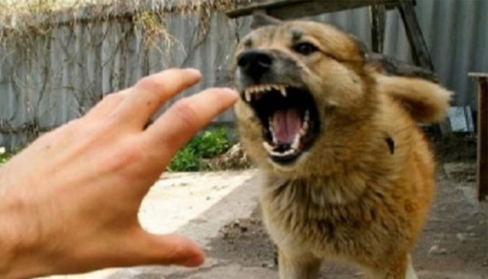«Հինգ կատաղած շներ հարձակվել են քրոջս 10-ամյա որդու վրա». պատգամավորն ահազանգում է