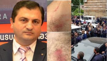 Гор Абрамян: Публикации СМИ о применении насилия в отношении задержанных в Капане лиц направлены в ССС
