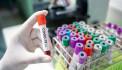 В Азербайджане число заразившихся коронавирусом достигло 4 568