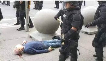 ԱՄՆ-ում ոստիկանները կոտրել են տարեց տղամարդու գլուխը