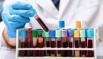 Վրաստանում կորոնավիրուսի հաստատված դեպքերի թիվը ավելացել է 8-ով