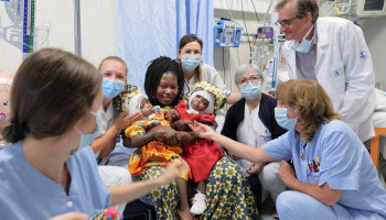 Two Central African conjoined twins joined together in Rome