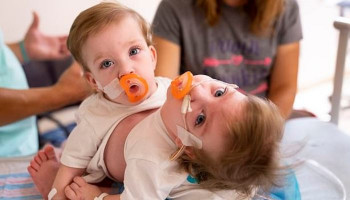 Conjoined 14-month-old twins born locked in an embrace are successfully separated in Michigan following 11-hour surgery involving more than 24 doctors and nurses